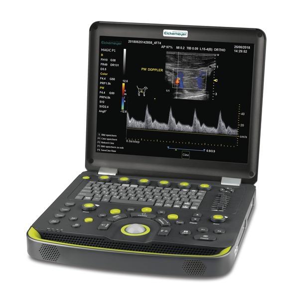 MAGIC P1 - Portable Ultrasound Unit