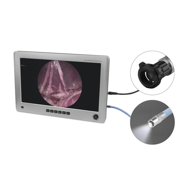 EickView 4-in-1 Endoscopy Monitor